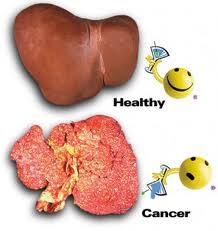 kancer jetre