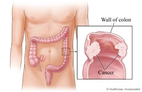 Rak debelog creva