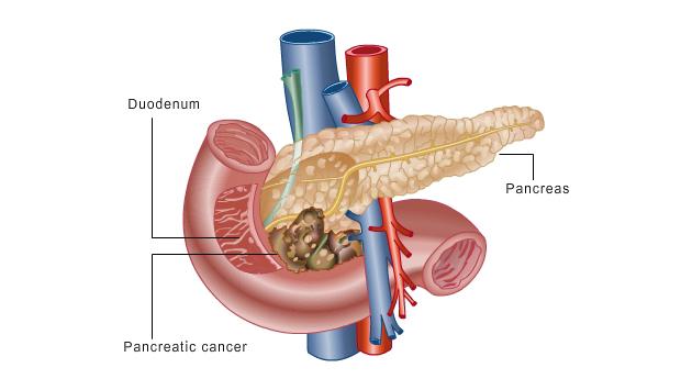 kancer pankreasa
