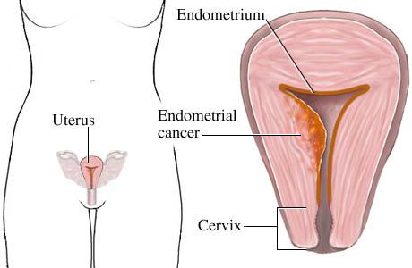 karcinom endometrijuma