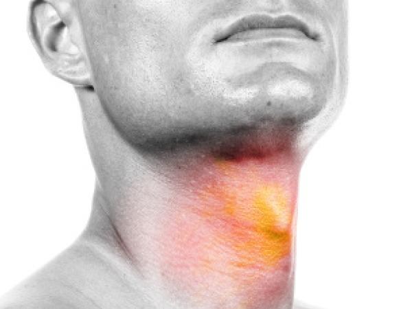 karcinom larinksa