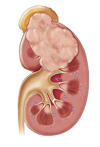 Vilmsov tumor