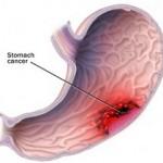Tumor želuca