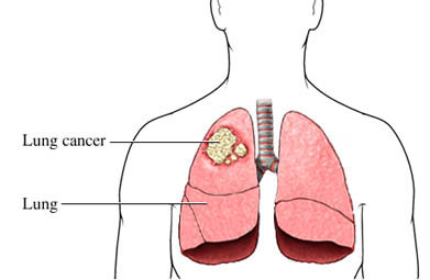 Kancer pluća