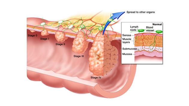 Karcinom debelog creva