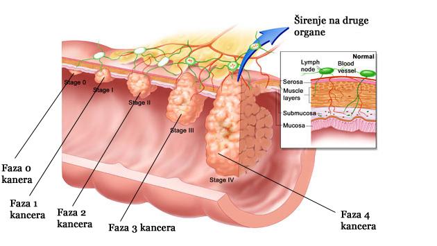 Faze kancera debelog creva