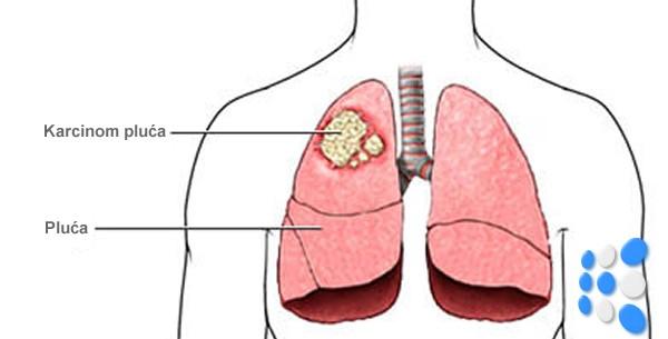 karcinom pluca