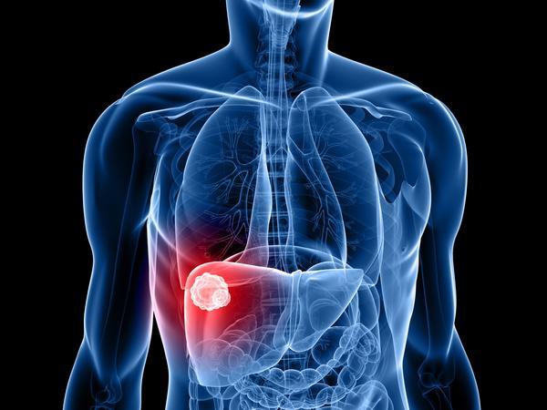 faktori rizika za tumor jetre