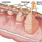 Karcinom kolona