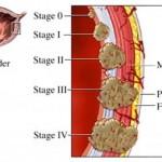 Rak mokraćne bešike