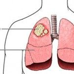 karcinom-pluca